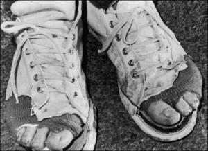 sneakers-worn-holes